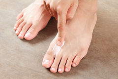 ATHLETE'S FOOT TREATMENT Stock Photography