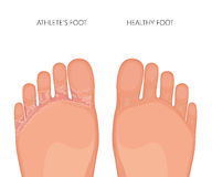 Athleten Fuß oder Tinea pedis Sohlen der Füße Stockbilder