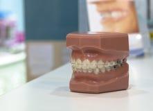 Atmosphäre, Klinik, zahnmedizinisch, Gebisse, Ausrüstung, Illustration, Implantate, Materialien, Orthodontie, Proben, Zähne Stockbild