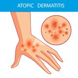 Atopic dermatis. The person scratches the arm on which is atopic dermatitis. Itching. royalty free illustration