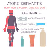 Atopic dermatitis, eczema Het medicijn is antihistaminicumtabletten en steroid room stock afbeeldingen