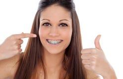 Atrakcyjna młoda kobieta mówi Ok z wspornikami Zdjęcia Stock