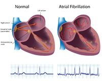 Atrial fibrillation Royalty Free Stock Images