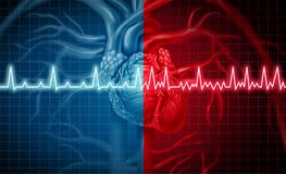 Atrial Fibrillation Medical Health Problem Stock Images