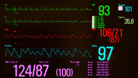 Atrial Flutter and Vital Signs Royalty Free Stock Image