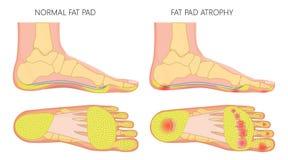 Atrofia grassa del cuscinetto del piede royalty illustrazione gratis