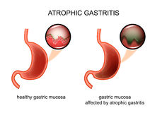 Atrophic gastritis. inflammation. Vector illustration of atrophic gastritis. inflammation of the mucous membrane vector illustration
