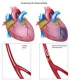 Attacco di cuore Immagini Stock