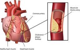 Attacco di cuore causato da Cholesterol Fotografie Stock