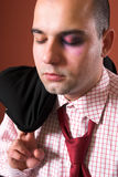 Attacked a Businessman. With black eye Stock Photography