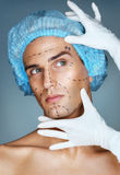 Attractive man patient with guideline marks on his face before plastic surgery operation. Stock Photo