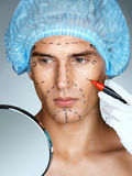 Attractive man patient in medical hat look in the mirror. While the nurse deals surgical mark lines on eyes, nose, cheek, and jaw. Beauty face concept royalty free stock image