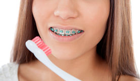 Attractive young woman with brackets cleaning her teeth Stock Images