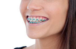 Attractive young woman with brackets Royalty Free Stock Photography