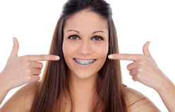 Attractive young woman pointing her brackets Stock Photography