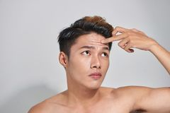 Attractive youthful naked male with trouble skin. Attractive youthful naked male with trouble skin Royalty Free Stock Images