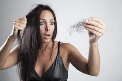 Attraktive junge Frau mit Haarausfall stockfoto