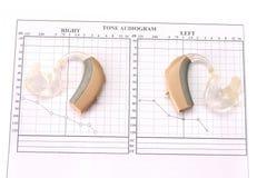 Audiología Imagen de archivo libre de regalías