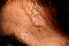 Aufgeblähte Adern auf dem Tempel Geschwollene Arterien Varikös auf der Stirn Lizenzfreie Stockfotos