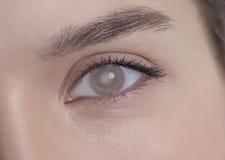Auge einer Frau mit Katarakt Lizenzfreies Stockfoto