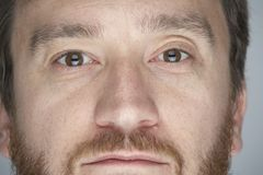 Augen weit 03 Lizenzfreie Stockbilder