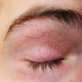 Augenlid mit Blutgefäßadern Stockbild
