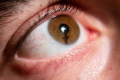 Augensommersprosse auf Iris, die Linse trägt lizenzfreies stockfoto