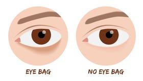 Augentasche Lizenzfreies Stockbild