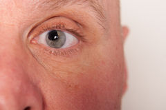 Augenverletzung lizenzfreies stockbild