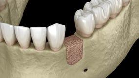 Augmentation Surgery - Adding new bone.