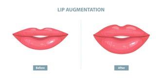Aumento del labio Antes y después de inyecciones del llenador del labio Vector