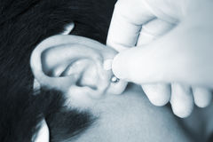 Auriculartherapy ear seed treatment Stock Photo