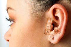 Auriculotherapy on female ear. Royalty Free Stock Images