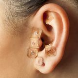 Auriculotherapy on human ear. Macro close up of auriculotherapy treatment on human ear stock images