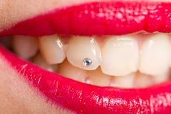 Ausbesserung der Zähne lizenzfreies stockfoto
