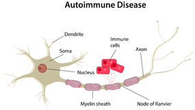 Auto-immuun Ziektediagram Stock Fotografie