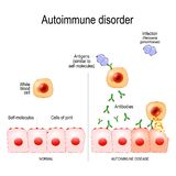 Autoimmune disorders. Antigens of bacterium Neisseria gonorrhoeae are similar to self-molecules of healthy joint cells. stock illustration