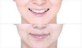Avant après, utilisant le rouge à lèvres sur la lèvre de moutth par lustre et affilez Photographie stock