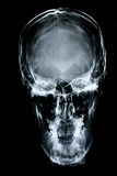 Avant de rayon X/visage Images libres de droits