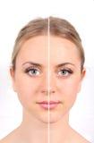 Avant et après photo stock