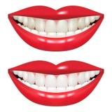 Avant et après blanchir des dents Bouche de femme d'isolement sur un fond blanc Image libre de droits