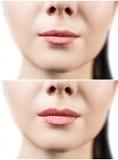 Avant et après des injections de remplisseur de lèvre Photo libre de droits