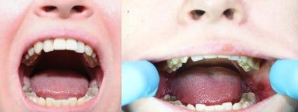 Avant et après l'opération pour enlever des dents de sagesse - eights Plan rapproché des dents de sagesse et des points après éli images libres de droits