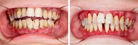 Avant et après le traitement Photo stock