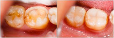Avant et après le traitement Photos stock