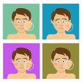 Avatar set for skincare infographic. Teenager boy with facial skin problems Stock Photos