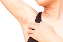 Axila do preto do problema das mulheres no fundo branco para cuidados com a pele e Foto de Stock