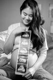 Aziatische zwangere vrouwen die untrasond beelden tonen Royalty-vrije Stock Foto