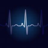 Azul do pulso ilustração stock