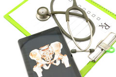 Bäckenbenröntgenstrålen avbildar show i tablet på läkarundersökning kartlägger Arkivfoton